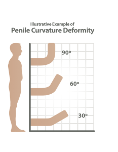 Peyronies disease diagnosis image